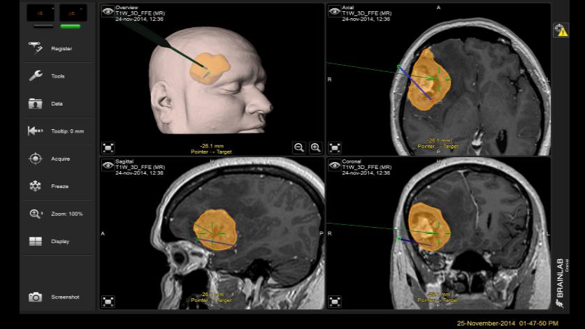 Neuronavegación